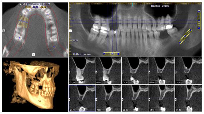 estudio implante