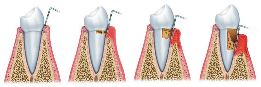 Resultado de imagen de periodoncia dibujo